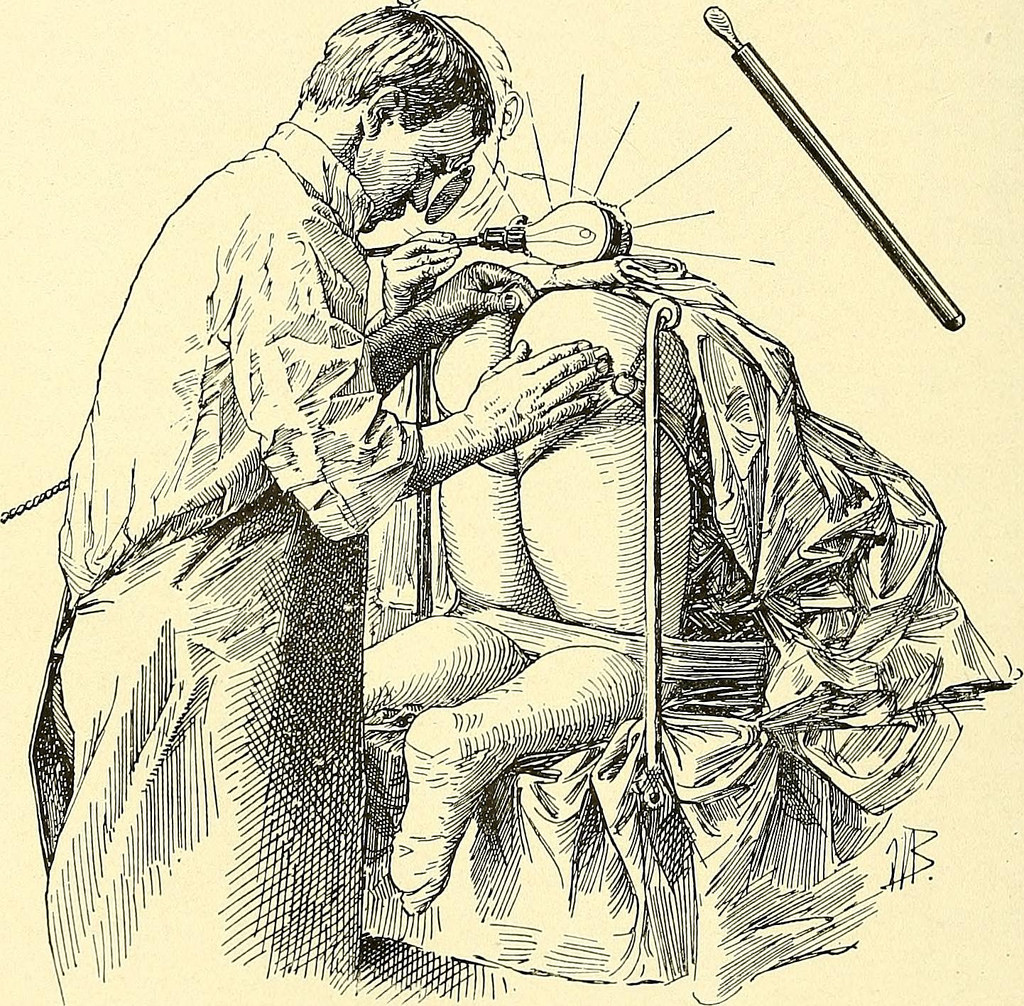 What is Gynecology?