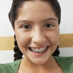 Orthodontic-Elastics