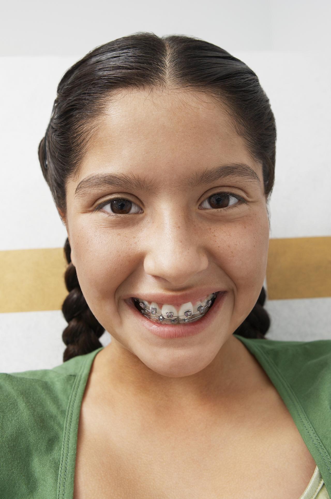 Orthodontic Elastics
