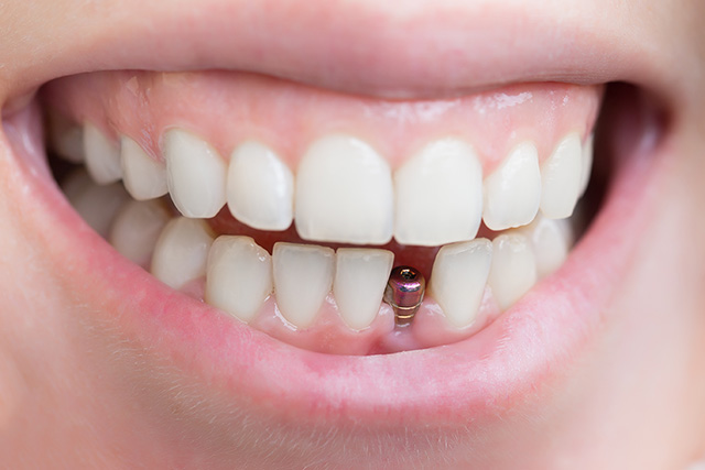 front tooth implant
