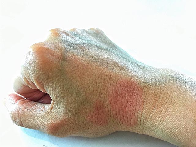 lupus medicine