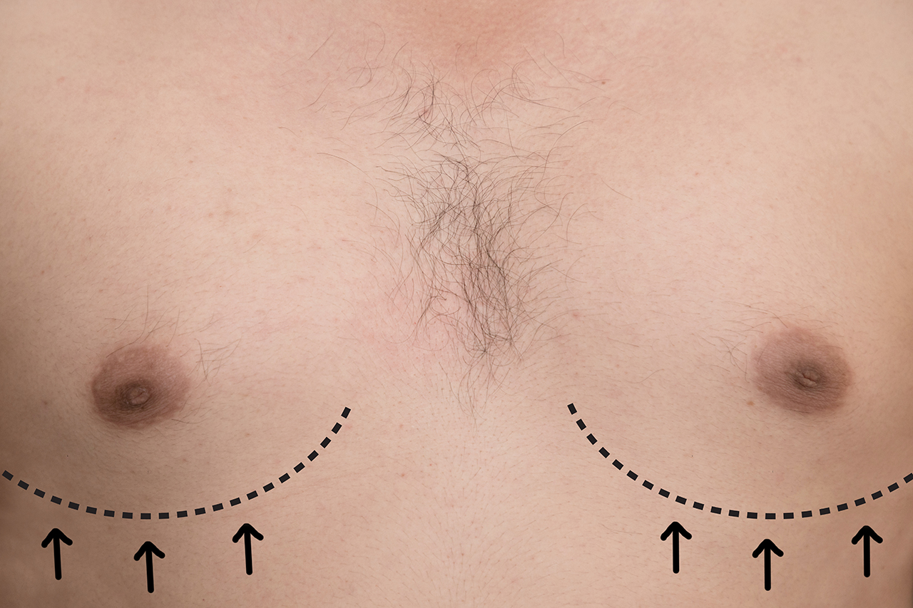 About Transgender Breast Augmentation