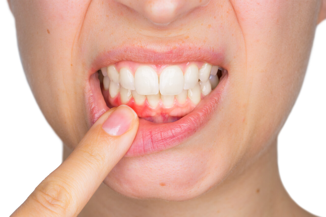 Top Home Remedies for Gum Pain