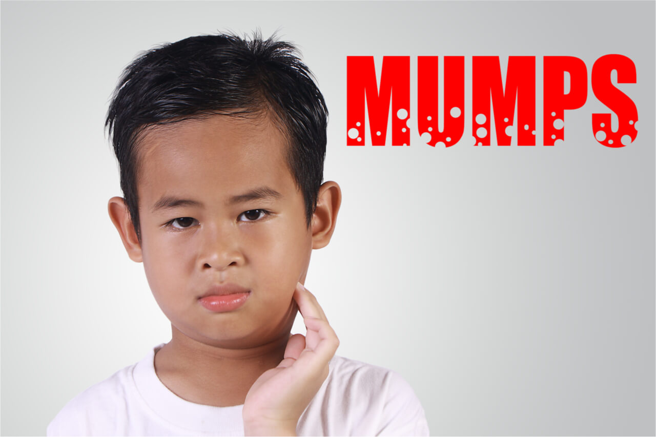 Natural Remedies for Mumps