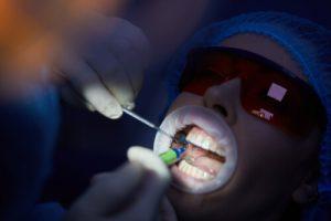 dental topical anesthesia