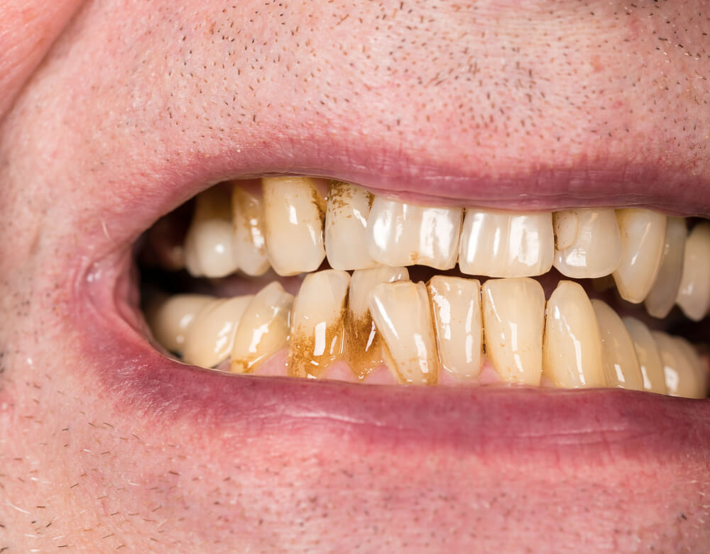 Treating receding gums through homeopathic medicine