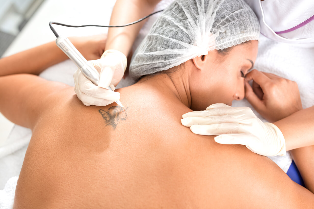 Can Anesthesia Ease Tattoo Removal Pain?