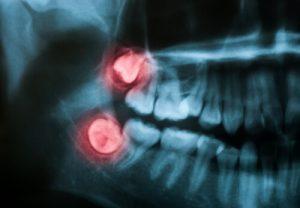 Options for Wisdom Teeth Sedation