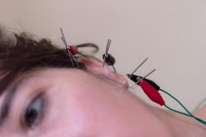 how does acupuncture for tmj work
