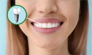 This girl has a dental implant on her mouth. Hm, what should she eat?